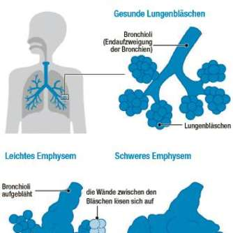 Was ist COPD - chronisch obstruktive Bronchitis?